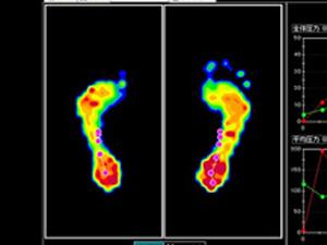 足底圧分析システム センサー正常